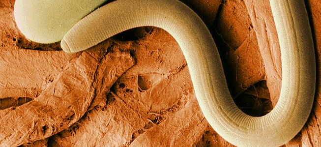 лебедев лечение паразитов